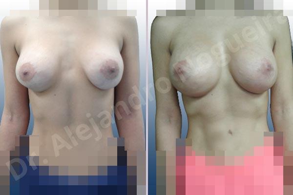 Pechos asimétricos,Deformidad en mama dinámica de implantes mamarios,Contractura capsular de implantes mamarios,Malposición de implantes mamarios desplazados,Deformidad en doble burbuja de implantes mamarios,Movimiento excesivo de implantes mamarios,Implantes mamarios volteados,Implantes mamarios excesivamente altos,Ondulaciones o rippling de implantes mamarios,Implantes mamarios excesivamente laterales,Visibilidad palpabilidad de implantes mamarios,Implantes mamarios bizcos,Pechos vacíos,Mamas delgadas,Pechos ligeramente caídos descolgados,Pechos pequeños,Escote ancho de implantes de pechos excesivamente separados,Escote ancho de pechos excesivamente separados,Implantes mamarios demasiado estrechos,Efecto en cascada de agua de implantes mamarios,Forma anatómica,Capsulectomía,Tamaño extra grande,Incisión hemiperiareolar inferior,Bolsillo en plano subfascial - photo 1