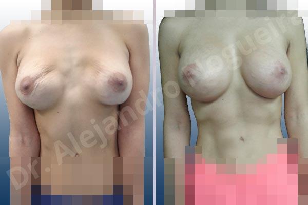 Pechos asimétricos,Deformidad en mama dinámica de implantes mamarios,Contractura capsular de implantes mamarios,Malposición de implantes mamarios desplazados,Deformidad en doble burbuja de implantes mamarios,Movimiento excesivo de implantes mamarios,Implantes mamarios volteados,Implantes mamarios excesivamente altos,Ondulaciones o rippling de implantes mamarios,Implantes mamarios excesivamente laterales,Visibilidad palpabilidad de implantes mamarios,Implantes mamarios bizcos,Pechos vacíos,Mamas delgadas,Pechos ligeramente caídos descolgados,Pechos pequeños,Escote ancho de implantes de pechos excesivamente separados,Escote ancho de pechos excesivamente separados,Implantes mamarios demasiado estrechos,Efecto en cascada de agua de implantes mamarios,Forma anatómica,Capsulectomía,Tamaño extra grande,Incisión hemiperiareolar inferior,Bolsillo en plano subfascial - photo 2
