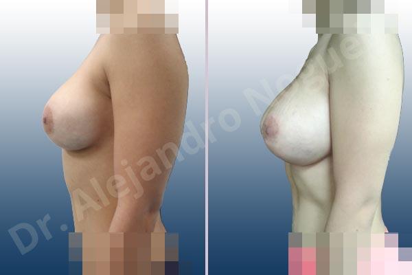 Pechos asimétricos,Deformidad en mama dinámica de implantes mamarios,Contractura capsular de implantes mamarios,Malposición de implantes mamarios desplazados,Deformidad en doble burbuja de implantes mamarios,Movimiento excesivo de implantes mamarios,Implantes mamarios volteados,Implantes mamarios excesivamente altos,Ondulaciones o rippling de implantes mamarios,Implantes mamarios excesivamente laterales,Visibilidad palpabilidad de implantes mamarios,Implantes mamarios bizcos,Pechos vacíos,Mamas delgadas,Pechos ligeramente caídos descolgados,Pechos pequeños,Escote ancho de implantes de pechos excesivamente separados,Escote ancho de pechos excesivamente separados,Implantes mamarios demasiado estrechos,Efecto en cascada de agua de implantes mamarios,Forma anatómica,Capsulectomía,Tamaño extra grande,Incisión hemiperiareolar inferior,Bolsillo en plano subfascial - photo 3