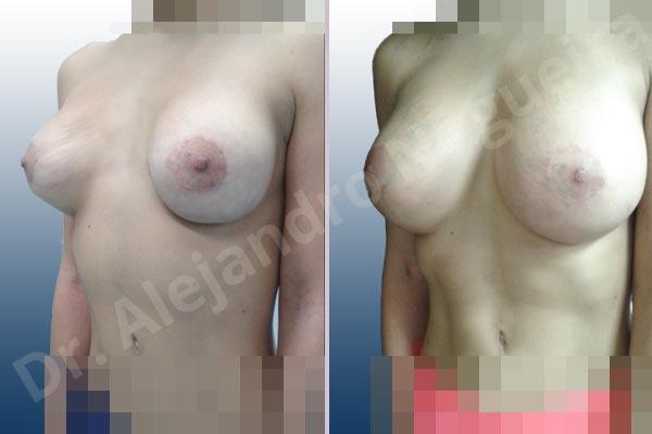 Pechos asimétricos,Deformidad en mama dinámica de implantes mamarios,Contractura capsular de implantes mamarios,Malposición de implantes mamarios desplazados,Deformidad en doble burbuja de implantes mamarios,Movimiento excesivo de implantes mamarios,Implantes mamarios volteados,Implantes mamarios excesivamente altos,Ondulaciones o rippling de implantes mamarios,Implantes mamarios excesivamente laterales,Visibilidad palpabilidad de implantes mamarios,Implantes mamarios bizcos,Pechos vacíos,Mamas delgadas,Pechos ligeramente caídos descolgados,Pechos pequeños,Escote ancho de implantes de pechos excesivamente separados,Escote ancho de pechos excesivamente separados,Implantes mamarios demasiado estrechos,Efecto en cascada de agua de implantes mamarios,Forma anatómica,Capsulectomía,Tamaño extra grande,Incisión hemiperiareolar inferior,Bolsillo en plano subfascial - photo 4