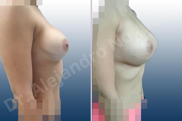 Pechos asimétricos,Deformidad en mama dinámica de implantes mamarios,Contractura capsular de implantes mamarios,Malposición de implantes mamarios desplazados,Deformidad en doble burbuja de implantes mamarios,Movimiento excesivo de implantes mamarios,Implantes mamarios volteados,Implantes mamarios excesivamente altos,Ondulaciones o rippling de implantes mamarios,Implantes mamarios excesivamente laterales,Visibilidad palpabilidad de implantes mamarios,Implantes mamarios bizcos,Pechos vacíos,Mamas delgadas,Pechos ligeramente caídos descolgados,Pechos pequeños,Escote ancho de implantes de pechos excesivamente separados,Escote ancho de pechos excesivamente separados,Implantes mamarios demasiado estrechos,Efecto en cascada de agua de implantes mamarios,Forma anatómica,Capsulectomía,Tamaño extra grande,Incisión hemiperiareolar inferior,Bolsillo en plano subfascial - photo 6