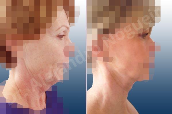 Párpados inferiores abultados,Surcos nasogenianos profundos,Mejillas caídas,Cara caída,Caída del perfil mandibular,Cuello caído,Párpados superiores descolgados,Lifting de la cara y el cuello en plano profundo de SMAS platisma,Resección de bolsas grasas en el párpado inferior,Incisión vía transconjuntival,Resección cutánea y muscular de párpado superior - photo 4