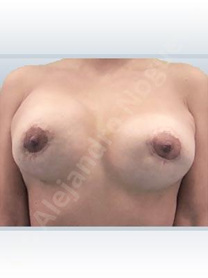Pechos asimétricos,Deformidad en mama dinámica de implantes mamarios,Contractura capsular de implantes mamarios,Tienda de escote de implantes mamarios,Malposición de implantes mamarios desplazados,Movimiento excesivo de implantes mamarios,Implantes mamarios excesivamente altos,Unimama por sinmastia de implantes mamarios,Visibilidad palpabilidad de implantes mamarios,Implantes mamarios bizcos,Pechos vacíos,Elevación de pecho fallida,Cicatrices hipertróficas,Areolas grandes,Pechos estrechos,Pechos ligeramente caídos descolgados,Pechos pequeños,Implantes mamarios demasiado anchos,Efecto en cascada de agua de implantes mamarios,Pechos tuberosos,Forma anatómica,Reducción areolar,Capsulectomía,Incisión circumareolar,Capsulorrafia sujetador interno,Bolsillo en plano subfascial