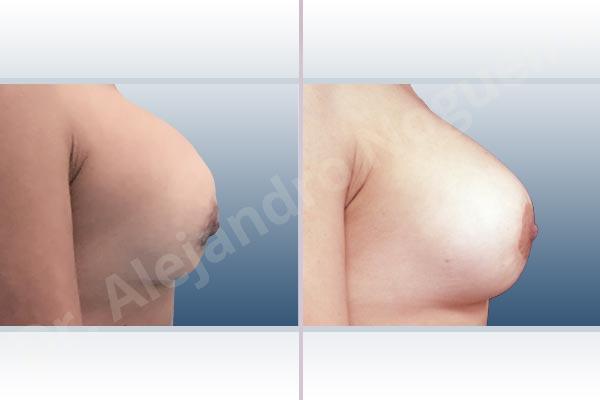 Pechos asimétricos,Deformidad en mama dinámica de implantes mamarios,Contractura capsular de implantes mamarios,Tienda de escote de implantes mamarios,Malposición de implantes mamarios desplazados,Movimiento excesivo de implantes mamarios,Implantes mamarios excesivamente altos,Unimama por sinmastia de implantes mamarios,Visibilidad palpabilidad de implantes mamarios,Implantes mamarios bizcos,Pechos vacíos,Elevación de pecho fallida,Cicatrices hipertróficas,Areolas grandes,Pechos estrechos,Pechos ligeramente caídos descolgados,Pechos pequeños,Implantes mamarios demasiado anchos,Efecto en cascada de agua de implantes mamarios,Pechos tuberosos,Forma anatómica,Reducción areolar,Capsulectomía,Incisión circumareolar,Capsulorrafia sujetador interno,Bolsillo en plano subfascial - photo 6