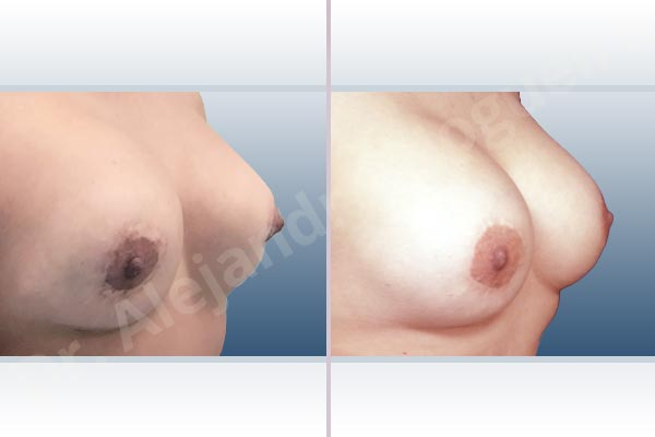 Pechos asimétricos,Deformidad en mama dinámica de implantes mamarios,Contractura capsular de implantes mamarios,Tienda de escote de implantes mamarios,Malposición de implantes mamarios desplazados,Movimiento excesivo de implantes mamarios,Implantes mamarios excesivamente altos,Unimama por sinmastia de implantes mamarios,Visibilidad palpabilidad de implantes mamarios,Implantes mamarios bizcos,Pechos vacíos,Elevación de pecho fallida,Cicatrices hipertróficas,Areolas grandes,Pechos estrechos,Pechos ligeramente caídos descolgados,Pechos pequeños,Implantes mamarios demasiado anchos,Efecto en cascada de agua de implantes mamarios,Pechos tuberosos,Forma anatómica,Reducción areolar,Capsulectomía,Incisión circumareolar,Capsulorrafia sujetador interno,Bolsillo en plano subfascial - photo 7