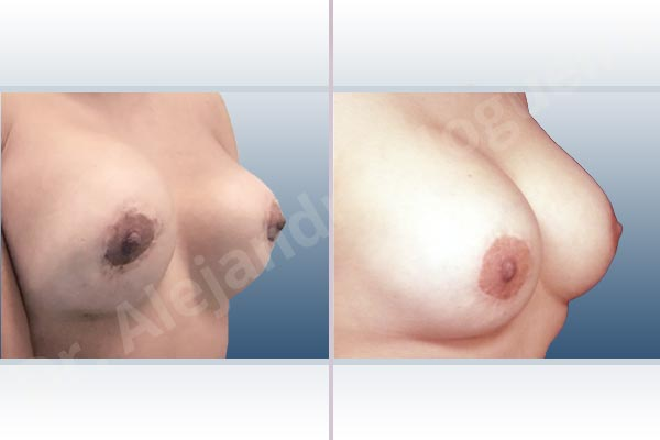 Pechos asimétricos,Deformidad en mama dinámica de implantes mamarios,Contractura capsular de implantes mamarios,Tienda de escote de implantes mamarios,Malposición de implantes mamarios desplazados,Movimiento excesivo de implantes mamarios,Implantes mamarios excesivamente altos,Unimama por sinmastia de implantes mamarios,Visibilidad palpabilidad de implantes mamarios,Implantes mamarios bizcos,Pechos vacíos,Elevación de pecho fallida,Cicatrices hipertróficas,Areolas grandes,Pechos estrechos,Pechos ligeramente caídos descolgados,Pechos pequeños,Implantes mamarios demasiado anchos,Efecto en cascada de agua de implantes mamarios,Pechos tuberosos,Forma anatómica,Reducción areolar,Capsulectomía,Incisión circumareolar,Capsulorrafia sujetador interno,Bolsillo en plano subfascial - photo 8
