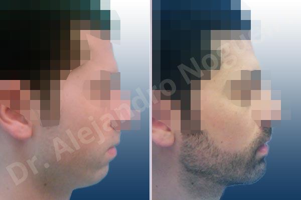 Mentón pequeño,Mentón débil,Osteotomía horizontal de mentón,Genioplastia unidimensional,Avance óseo de mentón - photo 4