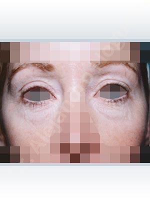 Párpados inferiores abultados,Párpados superiores descolgados ,Resección de bolsas grasas en el párpado inferior,Incisión vía transconjuntival,Resección cutánea y muscular de párpado superior