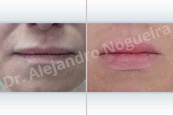 Labios pequeños,Relleno con colágeno dérmico autólogo de labio inferior,Relleno con colágeno dérmico autólogo de labio superior - photo 1