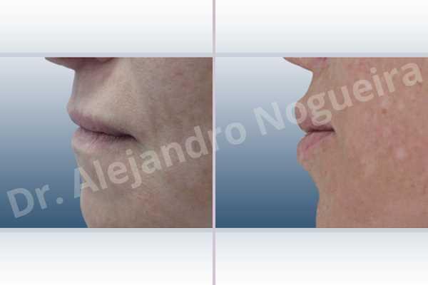 Labios pequeños,Relleno con colágeno dérmico autólogo de labio inferior,Relleno con colágeno dérmico autólogo de labio superior - photo 2
