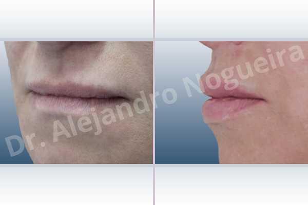 Labios pequeños,Relleno con colágeno dérmico autólogo de labio inferior,Relleno con colágeno dérmico autólogo de labio superior - photo 3