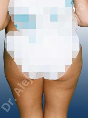 Grasa de las cartucheras,Liposucción tumescente