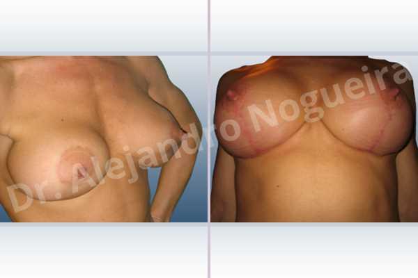 Pechos asimétricos,Deformidad en mama dinámica de implantes mamarios,Malposición de implantes mamarios desplazados,Deformidad en doble burbuja de implantes mamarios,Movimiento excesivo de implantes mamarios,Implantes mamarios excesivamente altos,Cicatrices desplazadas malposicionadas,Elevación de pecho fallida,Cicatrices hipertróficas,Cicatrices queloides,Areolas grandes,Pechos ligeramente caídos descolgados,Implantes mamarios demasiado estrechos,Cicatrices anchas,Pechos tuberosos,Incisión en ancla,Reducción areolar,Incisión a medida,Forma redonda,Bolsillo en plano subfascial,Pedículo superior - photo 8