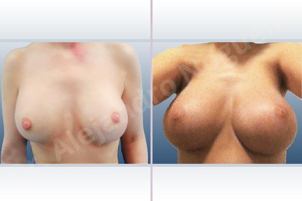 Pechos asimétricos,Deformidad en mama dinámica de implantes mamarios,Malposición de implantes mamarios desplazados,Deformidad en doble burbuja de implantes mamarios,Movimiento excesivo de implantes mamarios,Implantes mamarios excesivamente altos,Pechos vacíos,Pechos laterales,Pechos levemente caídos descolgados,Mamas delgadas,Pechos ligeramente caídos descolgados,Pechos pequeños,Escote ancho de implantes de pechos excesivamente separados,Escote ancho de pechos excesivamente separados,Implantes mamarios demasiado estrechos,Capsulectomía,Tamaño y forma hechos a medida,Tamaño extra grande,Incisión submamaria,Forma redonda,Bolsillo en plano subfascial - photo 2