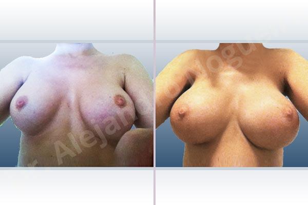 Pechos asimétricos,Deformidad en mama dinámica de implantes mamarios,Malposición de implantes mamarios desplazados,Deformidad en doble burbuja de implantes mamarios,Movimiento excesivo de implantes mamarios,Implantes mamarios excesivamente altos,Pechos vacíos,Pechos laterales,Pechos levemente caídos descolgados,Mamas delgadas,Pechos ligeramente caídos descolgados,Pechos pequeños,Escote ancho de implantes de pechos excesivamente separados,Escote ancho de pechos excesivamente separados,Implantes mamarios demasiado estrechos,Capsulectomía,Tamaño y forma hechos a medida,Tamaño extra grande,Incisión submamaria,Forma redonda,Bolsillo en plano subfascial - photo 3