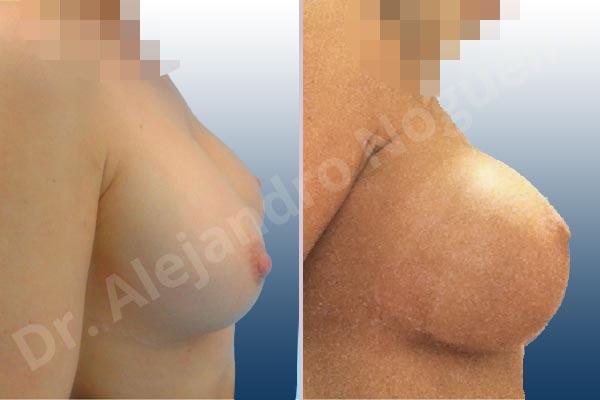 Pechos asimétricos,Deformidad en mama dinámica de implantes mamarios,Malposición de implantes mamarios desplazados,Deformidad en doble burbuja de implantes mamarios,Movimiento excesivo de implantes mamarios,Implantes mamarios excesivamente altos,Pechos vacíos,Pechos laterales,Pechos levemente caídos descolgados,Mamas delgadas,Pechos ligeramente caídos descolgados,Pechos pequeños,Escote ancho de implantes de pechos excesivamente separados,Escote ancho de pechos excesivamente separados,Implantes mamarios demasiado estrechos,Capsulectomía,Tamaño y forma hechos a medida,Tamaño extra grande,Incisión submamaria,Forma redonda,Bolsillo en plano subfascial - photo 4