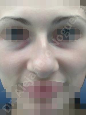 Nariz centroeuropea,Nariz desviada,Giba dorsal,Cartílagos alares grandes,Nariz grande,Punta sobreproyectada,Nariz de piel delgada,Incisión vía cerrada,Resección de giba dorsal,Resección cefálica de cruras laterales,Acortamiento por resección de cruras mediales,Osteotomías de huesos nasales,Resección caudal de cartílagos triangulares