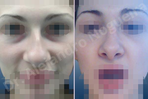Nariz centroeuropea,Nariz desviada,Giba dorsal,Cartílagos alares grandes,Nariz grande,Punta sobreproyectada,Nariz de piel delgada,Incisión vía cerrada,Resección de giba dorsal,Resección cefálica de cruras laterales,Acortamiento por resección de cruras mediales,Osteotomías de huesos nasales,Resección caudal de cartílagos triangulares - photo 1