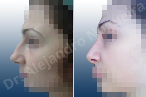 Nariz centroeuropea,Nariz desviada,Giba dorsal,Cartílagos alares grandes,Nariz grande,Punta sobreproyectada,Nariz de piel delgada,Incisión vía cerrada,Resección de giba dorsal,Resección cefálica de cruras laterales,Acortamiento por resección de cruras mediales,Osteotomías de huesos nasales,Resección caudal de cartílagos triangulares - photo 2