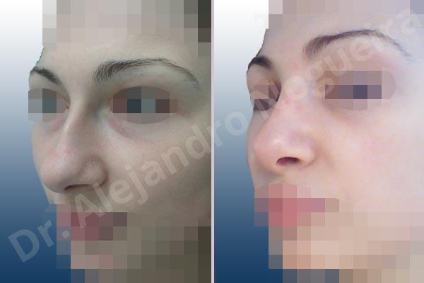 Nariz centroeuropea,Nariz desviada,Giba dorsal,Cartílagos alares grandes,Nariz grande,Punta sobreproyectada,Nariz de piel delgada,Incisión vía cerrada,Resección de giba dorsal,Resección cefálica de cruras laterales,Acortamiento por resección de cruras mediales,Osteotomías de huesos nasales,Resección caudal de cartílagos triangulares - photo 3