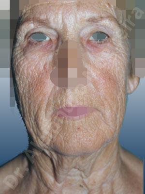 Deformidad de cuello de cobra,Surcos nasogenianos profundos,Mejillas caídas,Cara caída,Caída del perfil mandibular,Cuello caído,Lifting de la cara y el cuello en plano profundo de SMAS platisma