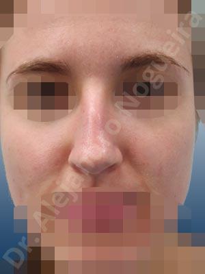 Giba dorsal,Cartílagos alares grandes,Nariz larga,Cartílagos laterales superiores largos,Punta sobreproyectada,Deformidad de punta descendiente,Incisión vía cerrada,Resección de giba dorsal,Resección cefálica de cruras laterales,Acortamiento por resección de cruras laterales,Acortamiento por resección de cruras mediales,Osteotomías de huesos nasales,Resección caudal de cartílagos triangulares