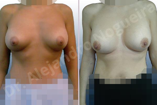 Deformidad en mama dinámica de implantes mamarios,Malposición de implantes mamarios desplazados,Deformidad en doble burbuja de implantes mamarios,Movimiento excesivo de implantes mamarios,Deslizamiento lateral de implantes mamarios,Implantes mamarios excesivamente altos,Implantes mamarios excesivamente laterales,Pechos vacíos,Pechos laterales,Pechos levemente caídos descolgados,Pechos pequeños,Escote ancho de pechos excesivamente separados,Implantes mamarios demasiado estrechos,Forma anatómica,Capsulectomía,Capsulorrafia sujetador interno,Incisión hemiperiareolar inferior,Bolsillo en plano subfascial - photo 1
