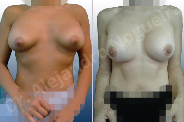 Deformidad en mama dinámica de implantes mamarios,Malposición de implantes mamarios desplazados,Deformidad en doble burbuja de implantes mamarios,Movimiento excesivo de implantes mamarios,Deslizamiento lateral de implantes mamarios,Implantes mamarios excesivamente altos,Implantes mamarios excesivamente laterales,Pechos vacíos,Pechos laterales,Pechos levemente caídos descolgados,Pechos pequeños,Escote ancho de pechos excesivamente separados,Implantes mamarios demasiado estrechos,Forma anatómica,Capsulectomía,Capsulorrafia sujetador interno,Incisión hemiperiareolar inferior,Bolsillo en plano subfascial - photo 2