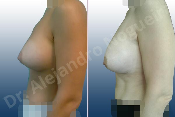 Deformidad en mama dinámica de implantes mamarios,Malposición de implantes mamarios desplazados,Deformidad en doble burbuja de implantes mamarios,Movimiento excesivo de implantes mamarios,Deslizamiento lateral de implantes mamarios,Implantes mamarios excesivamente altos,Implantes mamarios excesivamente laterales,Pechos vacíos,Pechos laterales,Pechos levemente caídos descolgados,Pechos pequeños,Escote ancho de pechos excesivamente separados,Implantes mamarios demasiado estrechos,Forma anatómica,Capsulectomía,Capsulorrafia sujetador interno,Incisión hemiperiareolar inferior,Bolsillo en plano subfascial - photo 3