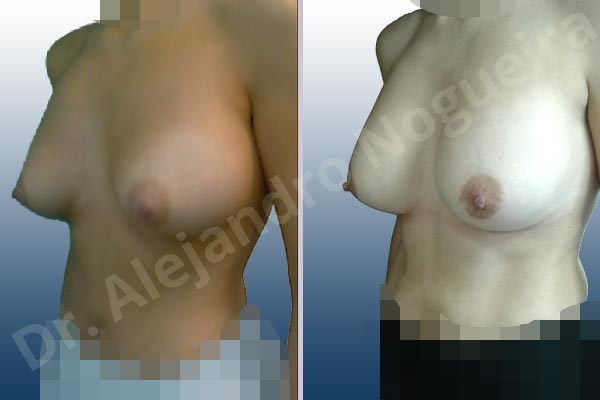 Deformidad en mama dinámica de implantes mamarios,Malposición de implantes mamarios desplazados,Deformidad en doble burbuja de implantes mamarios,Movimiento excesivo de implantes mamarios,Deslizamiento lateral de implantes mamarios,Implantes mamarios excesivamente altos,Implantes mamarios excesivamente laterales,Pechos vacíos,Pechos laterales,Pechos levemente caídos descolgados,Pechos pequeños,Escote ancho de pechos excesivamente separados,Implantes mamarios demasiado estrechos,Forma anatómica,Capsulectomía,Capsulorrafia sujetador interno,Incisión hemiperiareolar inferior,Bolsillo en plano subfascial - photo 4