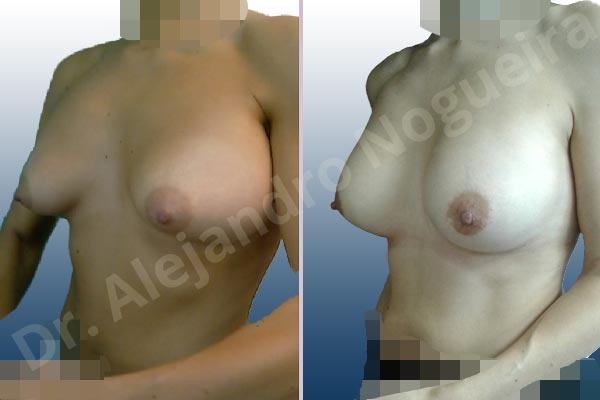 Deformidad en mama dinámica de implantes mamarios,Malposición de implantes mamarios desplazados,Deformidad en doble burbuja de implantes mamarios,Movimiento excesivo de implantes mamarios,Deslizamiento lateral de implantes mamarios,Implantes mamarios excesivamente altos,Implantes mamarios excesivamente laterales,Pechos vacíos,Pechos laterales,Pechos levemente caídos descolgados,Pechos pequeños,Escote ancho de pechos excesivamente separados,Implantes mamarios demasiado estrechos,Forma anatómica,Capsulectomía,Capsulorrafia sujetador interno,Incisión hemiperiareolar inferior,Bolsillo en plano subfascial - photo 5