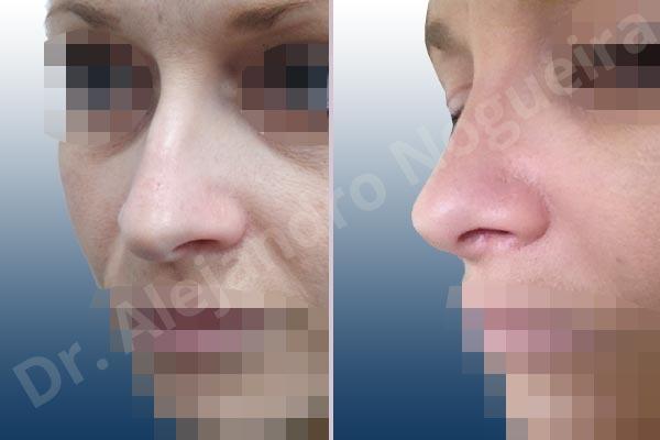 Giba dorsal,Cartílagos alares grandes,Nariz larga,Cartílagos laterales superiores largos,Punta sobreproyectada,Deformidad de punta descendiente,Incisión vía cerrada,Resección de giba dorsal,Resección cefálica de cruras laterales,Acortamiento por resección de cruras laterales,Acortamiento por resección de cruras mediales,Osteotomías de huesos nasales,Resección caudal de cartílagos triangulares - photo 4