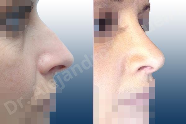 Giba dorsal,Cartílagos alares grandes,Nariz larga,Cartílagos laterales superiores largos,Punta sobreproyectada,Deformidad de punta descendiente,Incisión vía cerrada,Resección de giba dorsal,Resección cefálica de cruras laterales,Acortamiento por resección de cruras laterales,Acortamiento por resección de cruras mediales,Osteotomías de huesos nasales,Resección caudal de cartílagos triangulares - photo 5