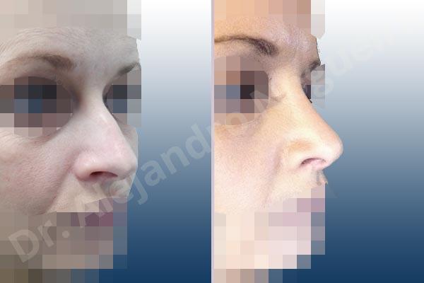 Giba dorsal,Cartílagos alares grandes,Nariz larga,Cartílagos laterales superiores largos,Punta sobreproyectada,Deformidad de punta descendiente,Incisión vía cerrada,Resección de giba dorsal,Resección cefálica de cruras laterales,Acortamiento por resección de cruras laterales,Acortamiento por resección de cruras mediales,Osteotomías de huesos nasales,Resección caudal de cartílagos triangulares - photo 6