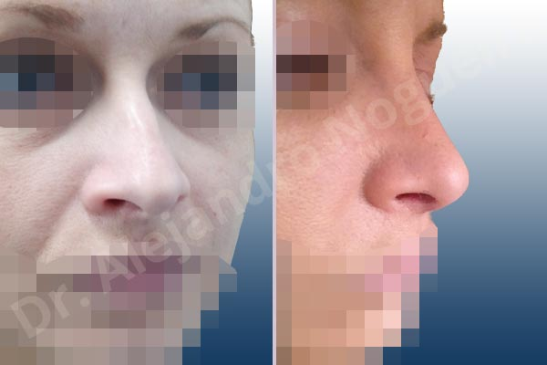 Giba dorsal,Cartílagos alares grandes,Nariz larga,Cartílagos laterales superiores largos,Punta sobreproyectada,Deformidad de punta descendiente,Incisión vía cerrada,Resección de giba dorsal,Resección cefálica de cruras laterales,Acortamiento por resección de cruras laterales,Acortamiento por resección de cruras mediales,Osteotomías de huesos nasales,Resección caudal de cartílagos triangulares - photo 7