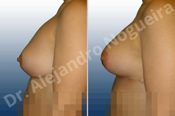Deformidad en mama dinámica de implantes mamarios,Malposición de implantes mamarios desplazados,Deformidad en doble burbuja de implantes mamarios,Movimiento excesivo de implantes mamarios,Implantes mamarios excesivamente altos,Implantes mamarios rotos,Cicatrices desplazadas malposicionadas,Pechos vacíos,Elevación de pecho fallida,Pechos levemente caídos descolgados,Pechos moderadamente caídos descolgados,Pechos ligeramente caídos descolgados,Efecto en cascada de agua de implantes mamarios,Forma anatómica,Incisión en ancla,Capsulectomía,Revisión escisional de cicatriz,Bolsillo en plano subfascial - photo 3