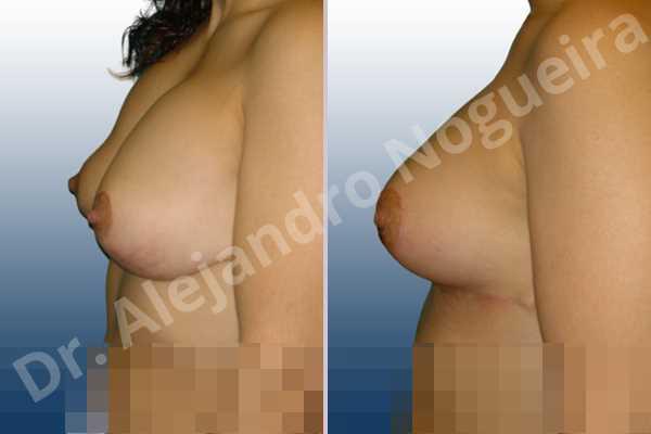 Deformidad en mama dinámica de implantes mamarios,Malposición de implantes mamarios desplazados,Deformidad en doble burbuja de implantes mamarios,Movimiento excesivo de implantes mamarios,Implantes mamarios excesivamente altos,Implantes mamarios rotos,Cicatrices desplazadas malposicionadas,Pechos vacíos,Elevación de pecho fallida,Pechos levemente caídos descolgados,Pechos moderadamente caídos descolgados,Pechos ligeramente caídos descolgados,Efecto en cascada de agua de implantes mamarios,Forma anatómica,Incisión en ancla,Capsulectomía,Revisión escisional de cicatriz,Bolsillo en plano subfascial - photo 5