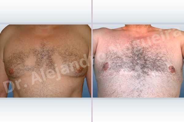 Ginecomastia,Mastectomía total - photo 1