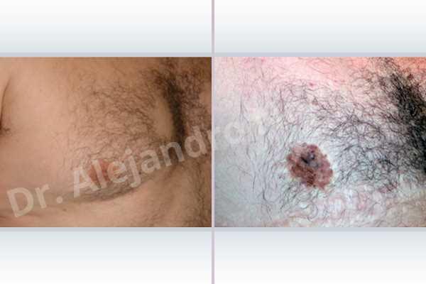 Ginecomastia,Mastectomía total - photo 3