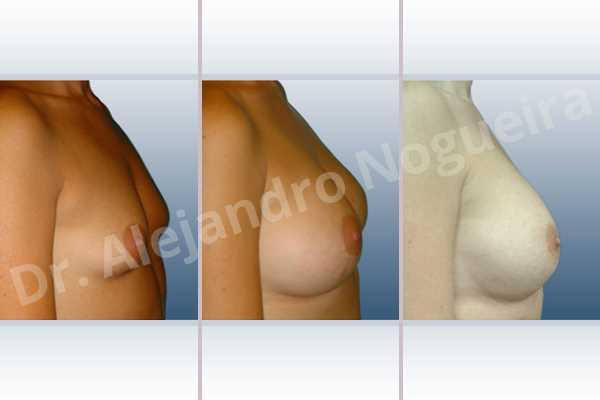 Pechos vacíos,Pechos laterales,Pechos pequeños,Escote ancho de pechos excesivamente separados,Bolsillo en plano dual,Incisión hemiperiareolar inferior,Forma redonda - photo 4
