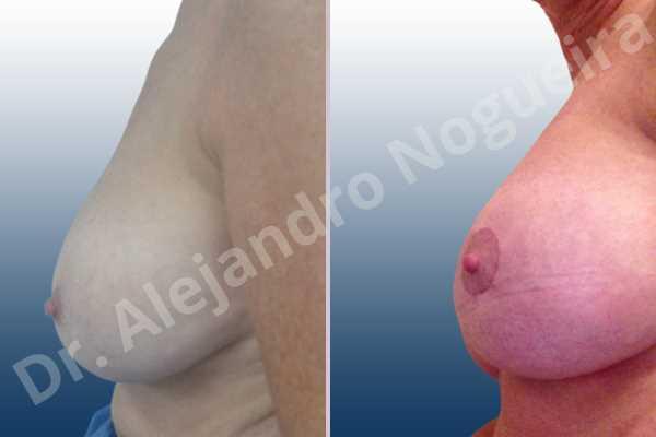 Contractura capsular de implantes mamarios,Calcificación de la cápsula de los implantes mamarios,Malposición de implantes mamarios desplazados,Implantes mamarios excesivamente altos,Implantes mamarios excesivamente laterales,Visibilidad palpabilidad de implantes mamarios,Implantes mamarios rotos,Implantes mamarios bizcos,Pechos vacíos,Pechos laterales,Pechos moderadamente caídos descolgados,Mamas péndulas,Escote ancho de implantes de pechos excesivamente separados,Escote ancho de pechos excesivamente separados,Implantes mamarios demasiado estrechos,Pechos anchos,Forma anatómica,Capsulectomía,Incisión circumareolar,Bolsillo en plano subfascial - photo 4