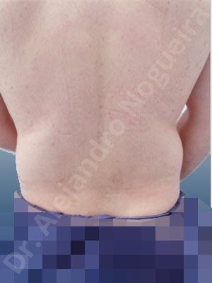 Michelín del flotador,Liposucción tumescente