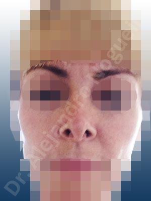 Ensanchamiento alar,Retracción de borde alar,Columela bífida,Punta bífida,Punta cuadrada,Dorso ancho,Nariz ancha,Crestas de dorso,Osteotomías fallidas,Columela colgante,Dorso en reloj de arena,Dorso sin giba,Deformidad en V invertida,Narinas grandes,Vestíbulos grandes,Dorso estrecho,Nariz estrecha,Fibrosis nasal,Colapso de válvula nasal,Deformidad en techo abierto,Punta sobreproyectada,Punta sobrerrotada,Bóveda intermedia pinzada,Nariz pinzada,Punta puntiaguda,Dorso romboidal,Deformidad en silla de montar,Nariz corta,Septum corto,Nariz de piel delgada,Irregularidades de punta,Deformidad en lápida de punta,Injerto tutor de columela,Regularización de dorso,Injerto de sustitución de dorso,Toma de injerto de cartílago auricular,Plastia de columela con suturas intercrurales,Plastia de punta con suturas interdomales,Injerto de extensión caudal de cruras laterales,Acortamiento por resección de cruras laterales,Acortamiento por resección de cruras mediales,Osteotomías de huesos nasales,Injerto superpuesto de dorso,Incisión vía abierta,Toma de injerto de cartílago septal,Injerto de extensión caudal de septum,Injerto de sustitución de septum,Injerto espaciador,Toma de injerto de fascia temporal,Desgrasado de punta,Retroposición de columela con lengüeta en ranura,Plastia de punta con tallado transdomal,Plastia de punta con suturas transdomales