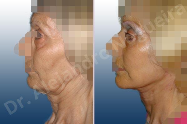 Surcos nasogenianos profundos,Párpados inferiores abultados,Papada,Mejillas caídas,Cara caída,Caída del perfil mandibular,Cuello caído,Lifting de la cara y el cuello en plano profundo de SMAS platisma,Resección de bolsas grasas en el párpado inferior,Incisión vía transconjuntival - photo 2