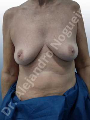 Pechos vacíos,Pechos laterales,Pechos moderadamente caídos descolgados,Pechos pequeños,Escote ancho de pechos excesivamente separados,Pechos anchos,Forma anatómica,Incisión hemiperiareolar inferior,Bolsillo en plano subfascial