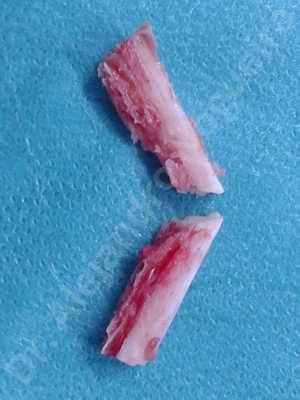 Mentón pequeño,Mentón débil,Osteotomía oblicua de mentón,Toma de injerto óseo del codo,Avance óseo de mentón,Genioplastia bidimensional,Injerto óseo vertical de mentón