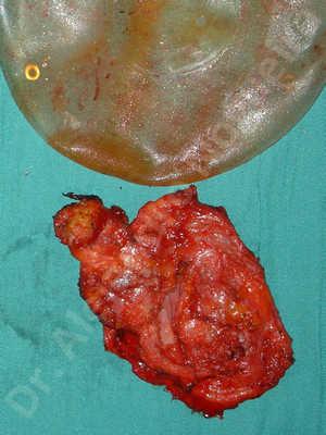 Pechos asimétricos,Implantes mamarios rotos,Pechos vacíos,Implantes mamarios demasiado estrechos,Capsulectomía