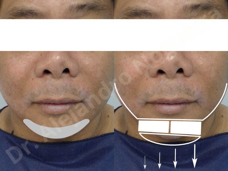 Cicatrices hipertróficas,Mentón pequeño,Mentón débil,Toma de injerto óseo de la cadera,Osteotomía oblicua de mentón,Avance óseo de mentón,Genioplastia bidimensional,Injerto óseo vertical de mentón - photo 1