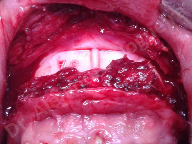 Cicatrices hipertróficas,Mentón pequeño,Mentón débil,Toma de injerto óseo de la cadera,Osteotomía oblicua de mentón,Avance óseo de mentón,Genioplastia bidimensional,Injerto óseo vertical de mentón - photo 7