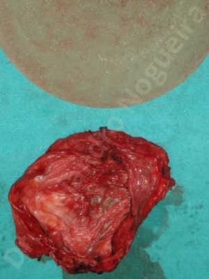 Contractura capsular de implantes mamarios,Malposición de implantes mamarios desplazados,Implantes mamarios excesivamente altos,Ondulaciones o rippling de implantes mamarios,Implantes mamarios excesivamente laterales,Visibilidad palpabilidad de implantes mamarios,Implantes mamarios bizcos,Pechos laterales,Mamas delgadas,Pechos ligeramente caídos descolgados,Tórax hundido,Escote ancho de implantes de pechos excesivamente separados,Escote ancho de pechos excesivamente separados,Implantes mamarios demasiado estrechos,Pechos anchos,Capsulectomía